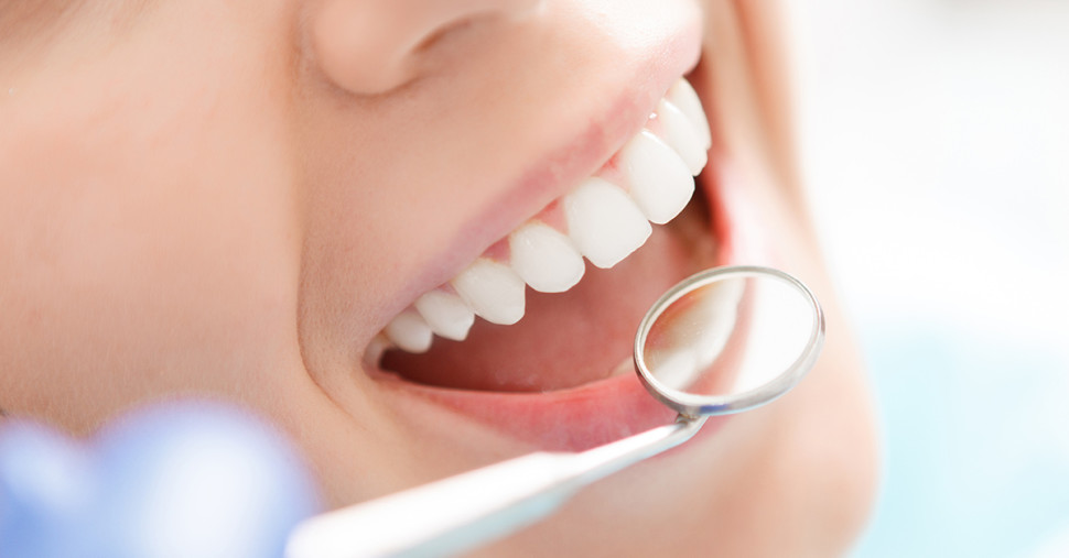 Parodontite, cos'è e come si cura - Studio Marcon