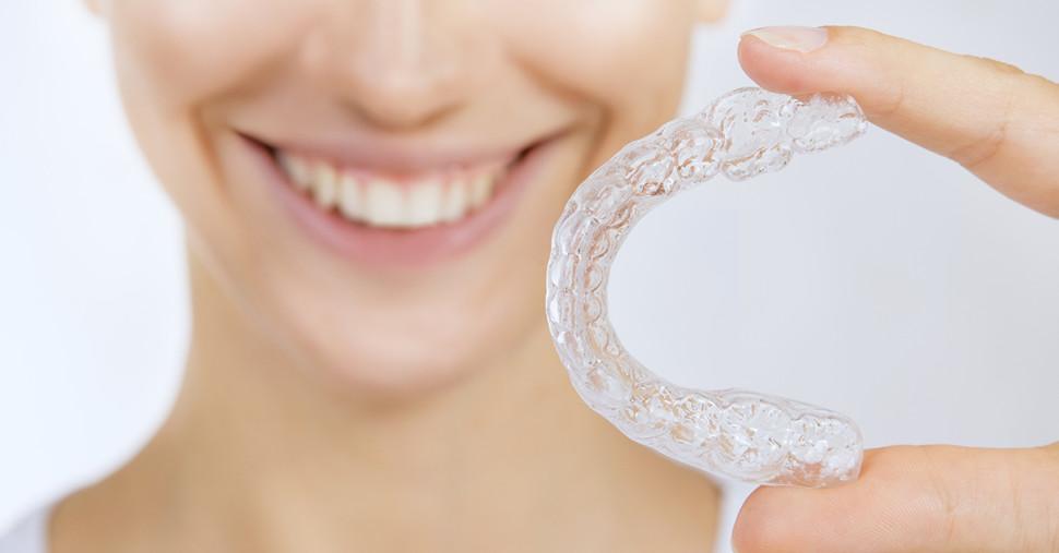 Trattamento ortodontico Invisalign