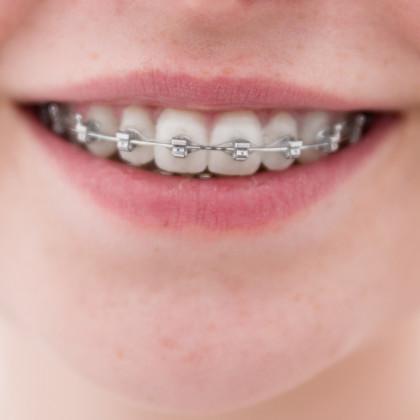 Ortodonzia, malocclusione e denti storti