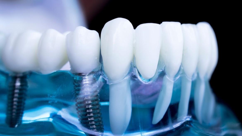 mantenimento protesi dentale