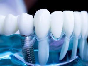 Mantenimento della protesi dentale su impianti